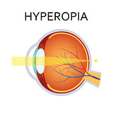 Hyperopia eyesight disorder.