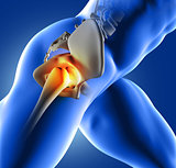 3D blue medical image of hip joint
