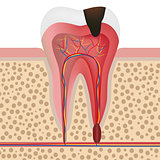 Illustration of infected tooth