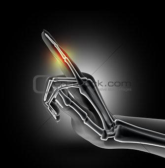 3D female medical image of bones in index finger