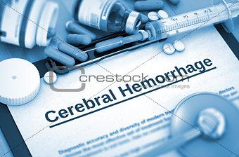 Cerebral Hemorrhage Diagnosis. Medical Concept.