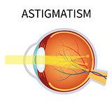 Astigmatism. Eyesight problem, blurred vision.