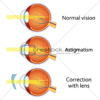 Astigmatism corrected by a cylindrical lens.