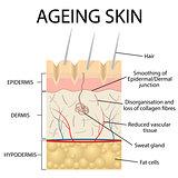 Old skin anatomy.