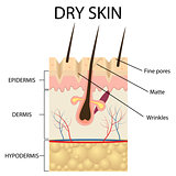 Illustration of The layers of dry skin