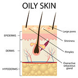 Illustration of The layers of oily skin
