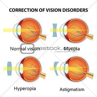 Correction of various eye vision disorder.