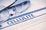 Diagnosis - Cellulite. Medicine Concept. 3D Illustration.