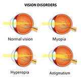 Common vision disorders.