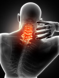 3D medical image of man with neck pain