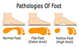 Pathologies of foot