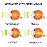 Correction of eye vision disorders by lens.