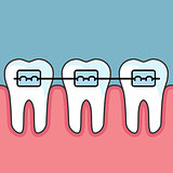 Teeth with dental braces - dental arrange