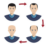 Four stages of hair loss for men.