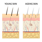 Young healthy skin and older skin comparison.