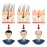 Hair loss illustration.