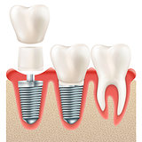 Dental implant set. EPS 10