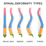 Spinal deformity types.