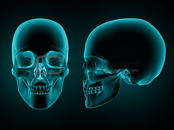 3D skull front and side on