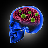 3D male skull with virus cells attacking the brain