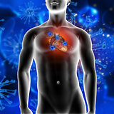 3D medical background showing virus cells attacking a heart in a