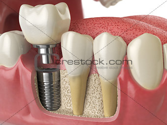 Anatomy of healthy teeth and tooth dental implant in human dentu