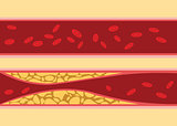 comparison between normal and unhealthy cholesterol human blood vein cell stream flow with fat on side with flat style illustration