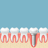 Row of teeth with dental implant - teeth prosthetics scheme, gum
