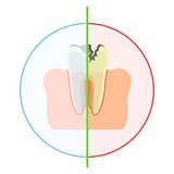 healthy vs damaged tooth