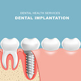 Gum section with dental implantat - row of teeth