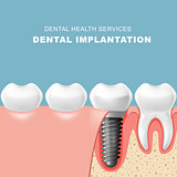 Teeth and dental implantat inserted into gum - tooth implantatio