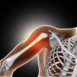 3D medical image showing broken bone in arm