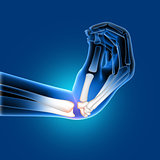 3D medical image of a painful bent wrist
