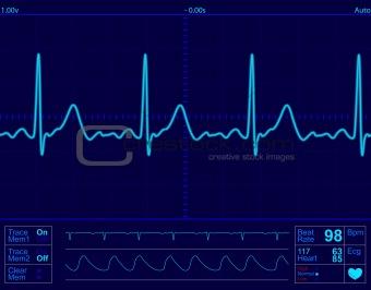 heart monitor screen